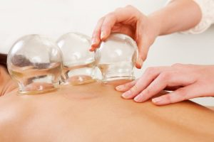 Cupping Northampton clinic